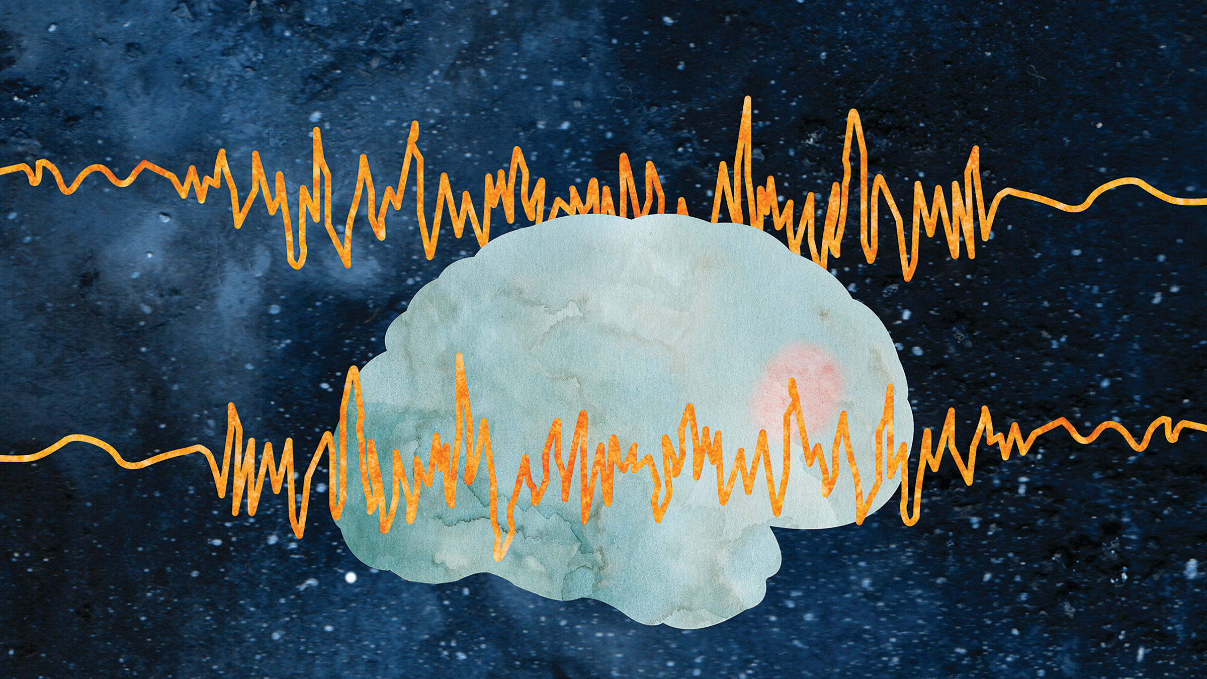 Illustration of a brain EEG, showing epilepsy