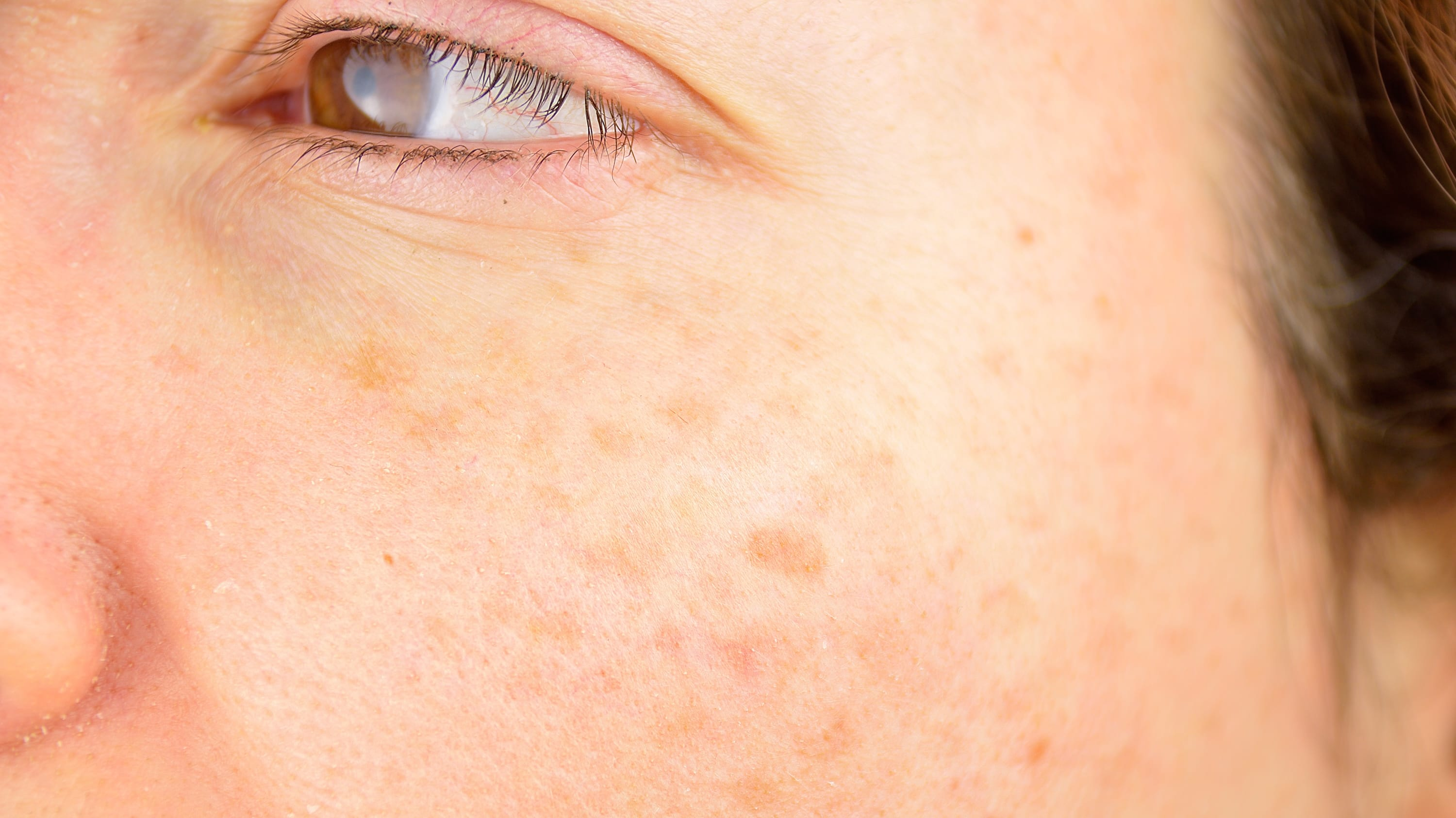 woman cheek with liver spot causes by sun damage
