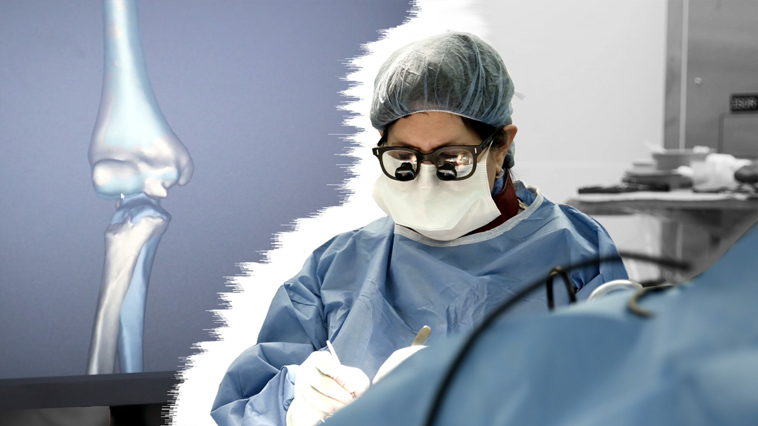 A doctor operates on a patient in front of a 3D rendering of the patient's bone.