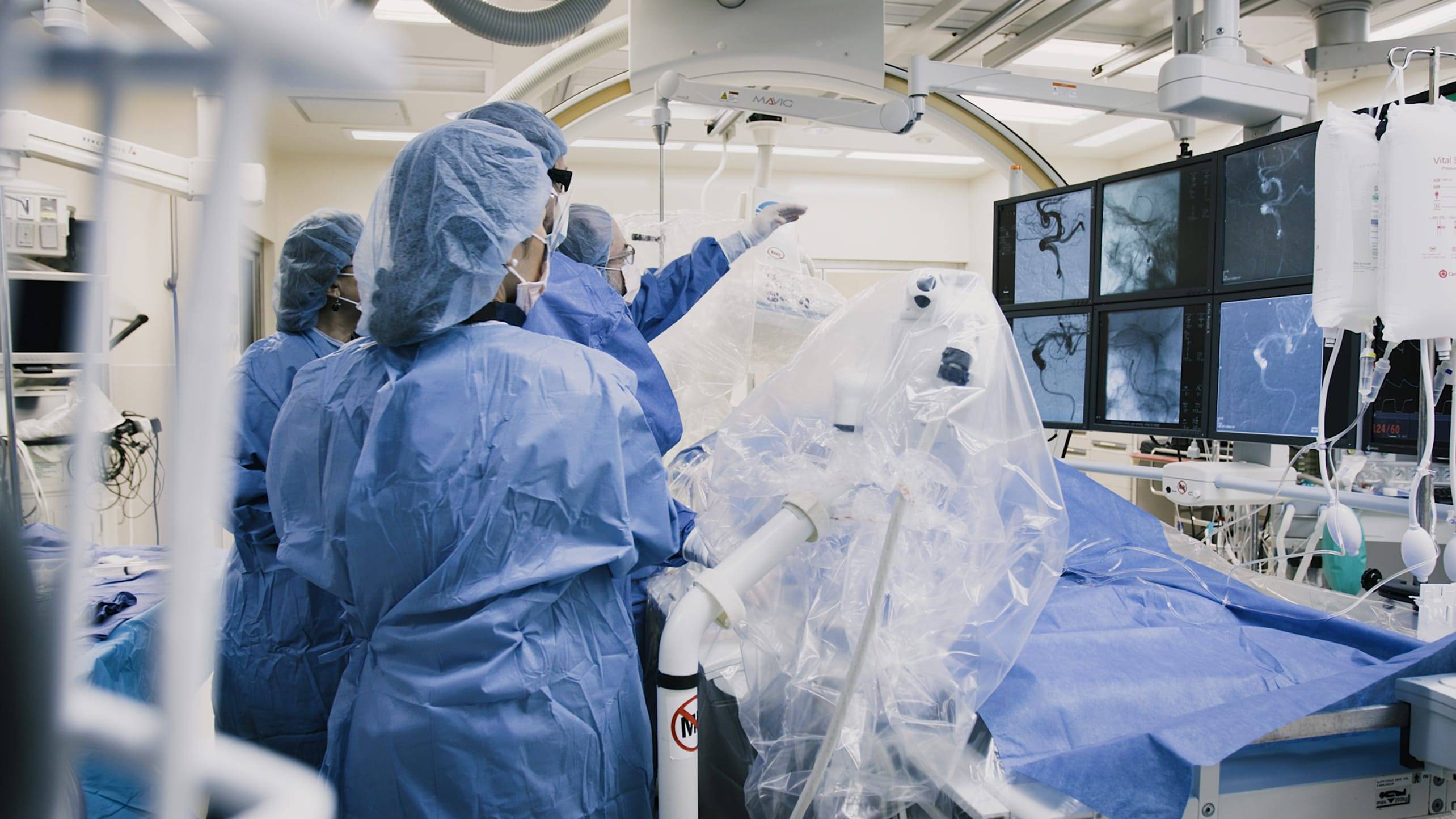 Neurosurgeons perform endovacular surgery to treat a brain aneurysm.