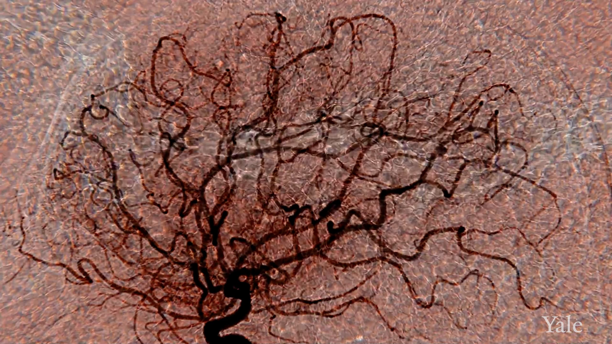 Medical imaging showing blood vessels in the brain with an overlay of red blood cells