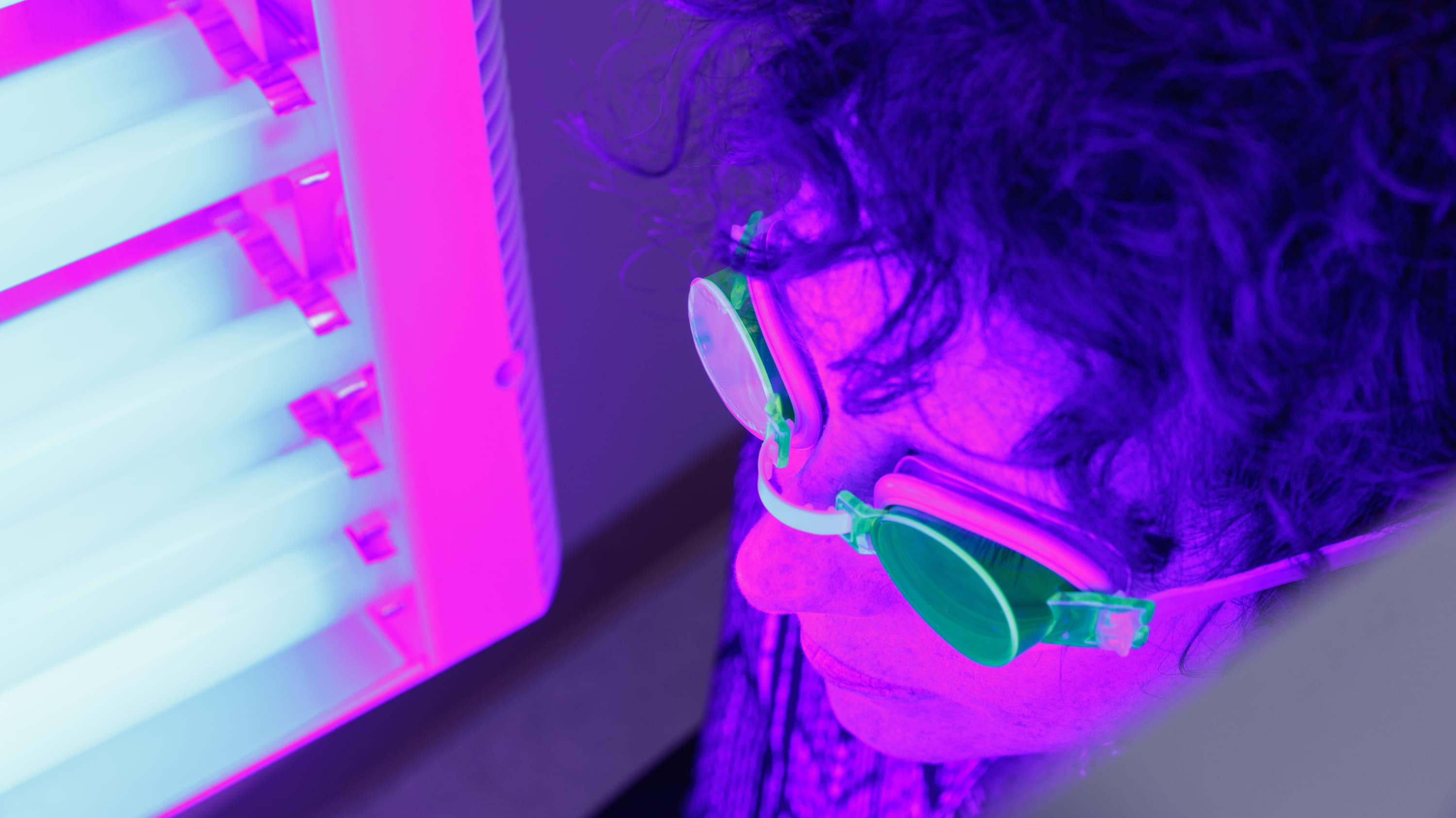 A patient received photodynamic light therapy.