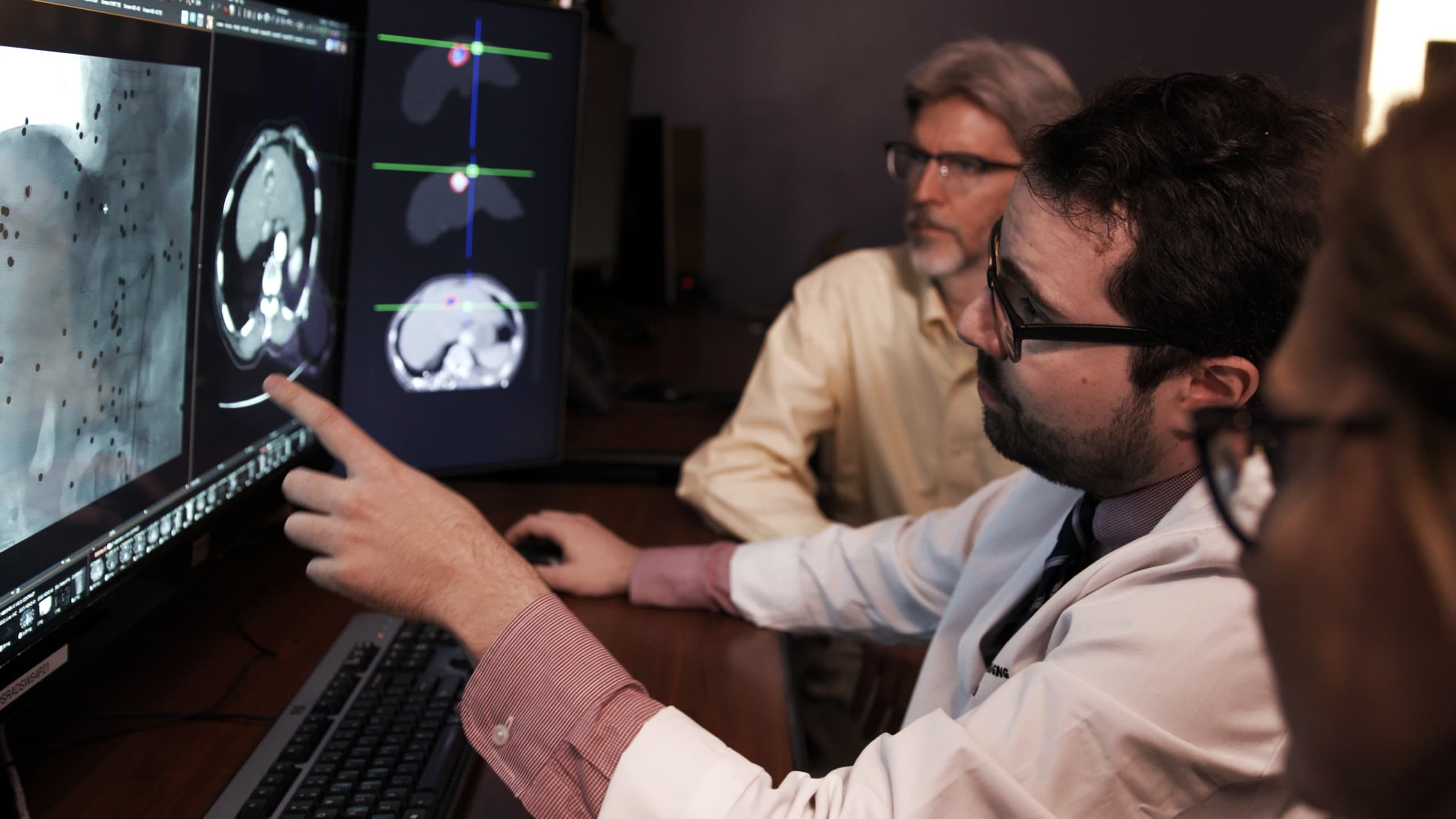 Doctors and researchers look over liver cancer imaging.