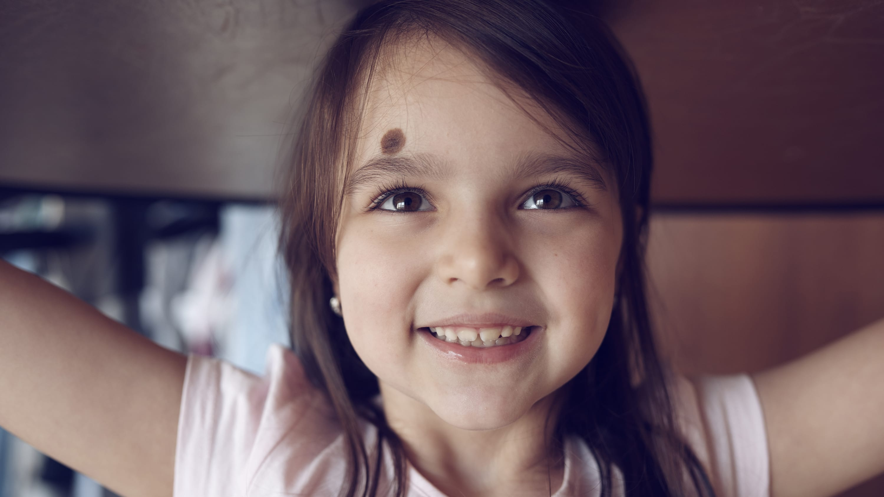 a young girl with a large birthmark on her forehead smiles