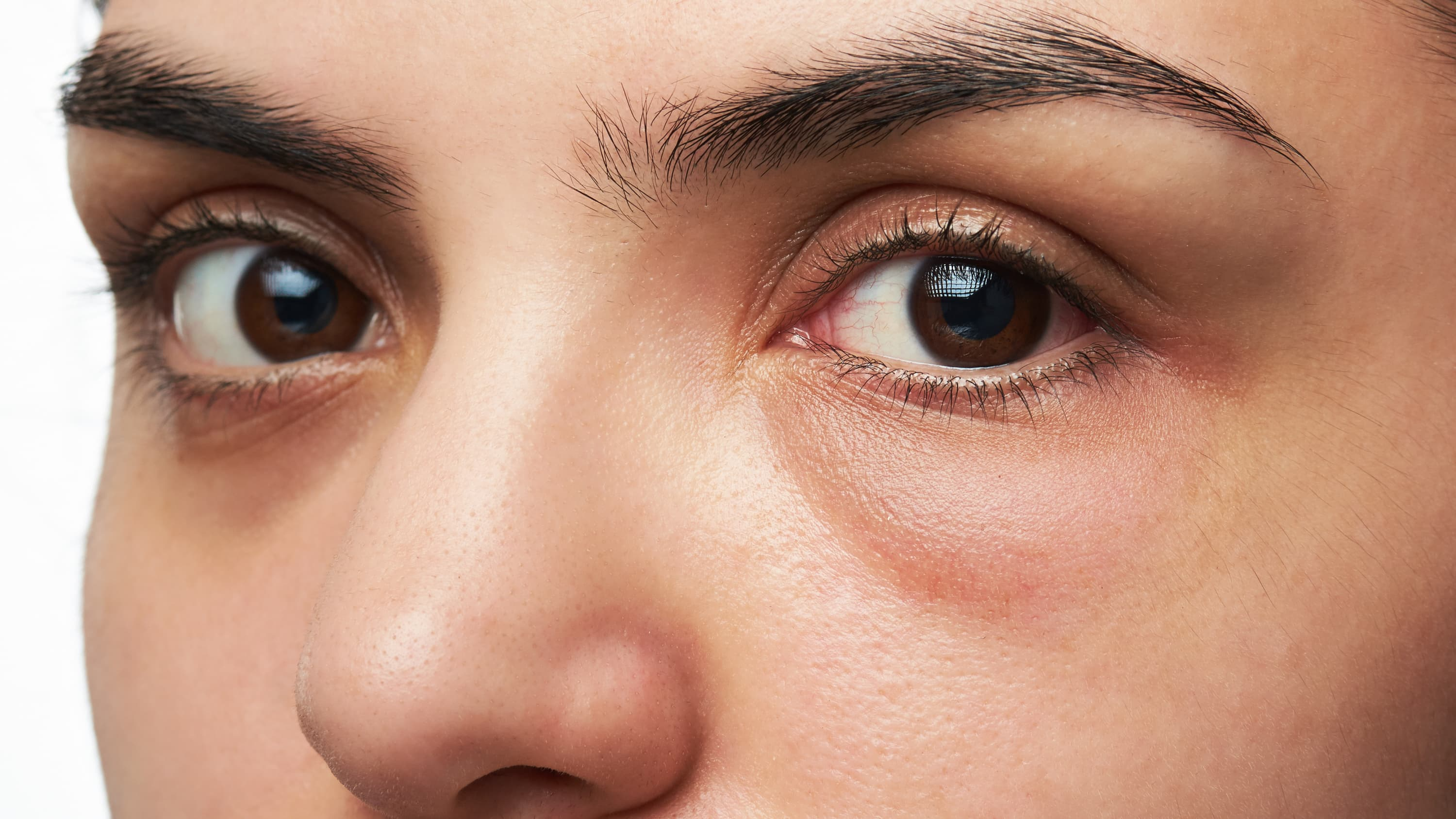 A close-up of a woman who possibly has a corneal abrasion