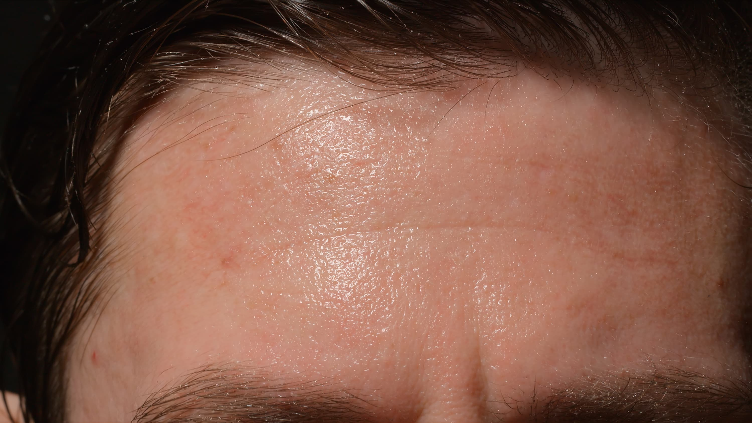 Close up of a man's sweaty forehead, possibly someone who has hyperhidrosis