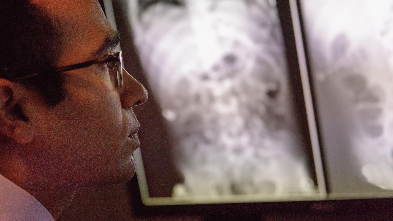 Jay Pahade, MD, looking at an xray