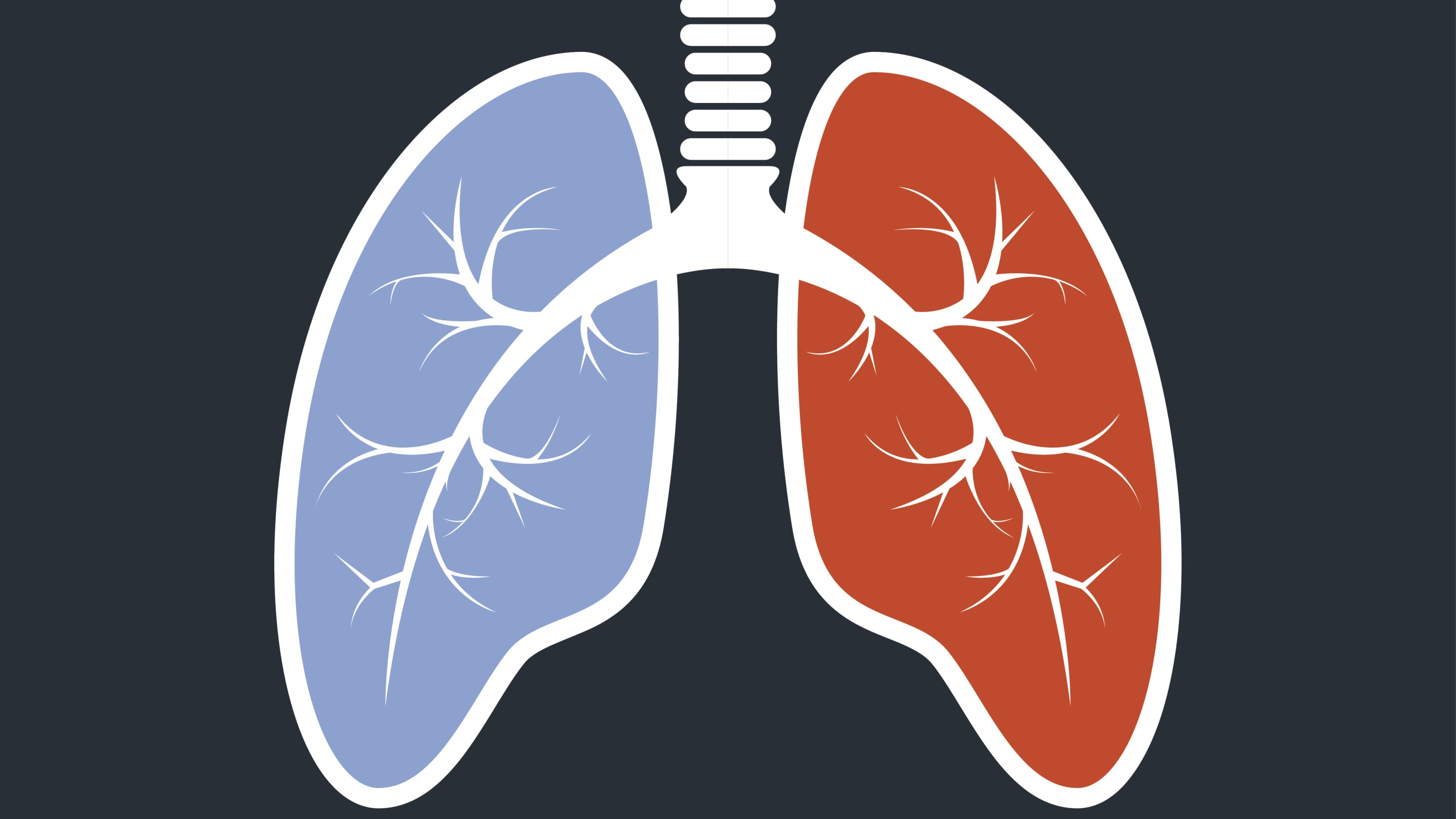 illustration of lungs, as a way of describing pulmonary arterial hypertension