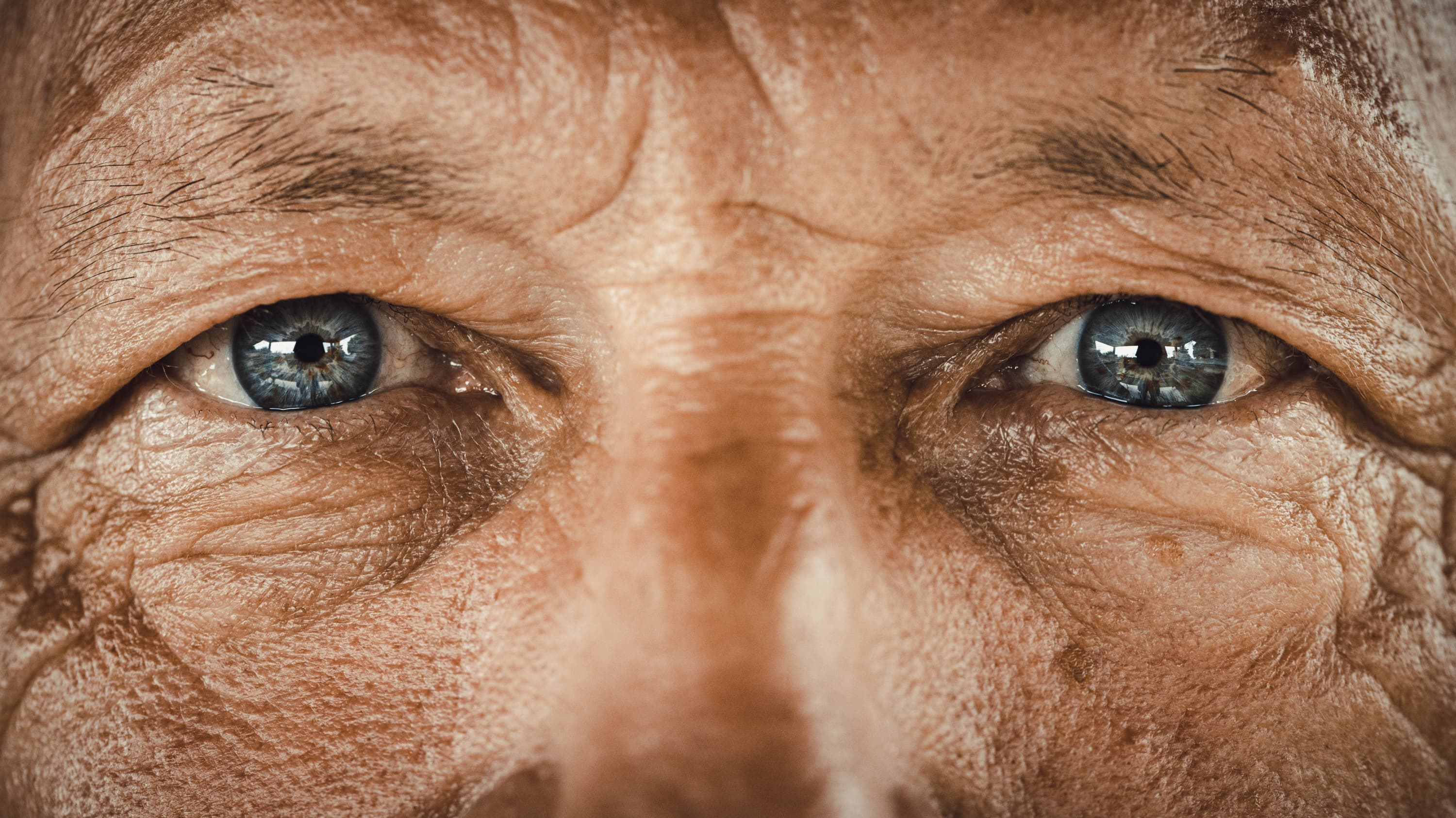old man with blue eyes, possibly with eye cancer