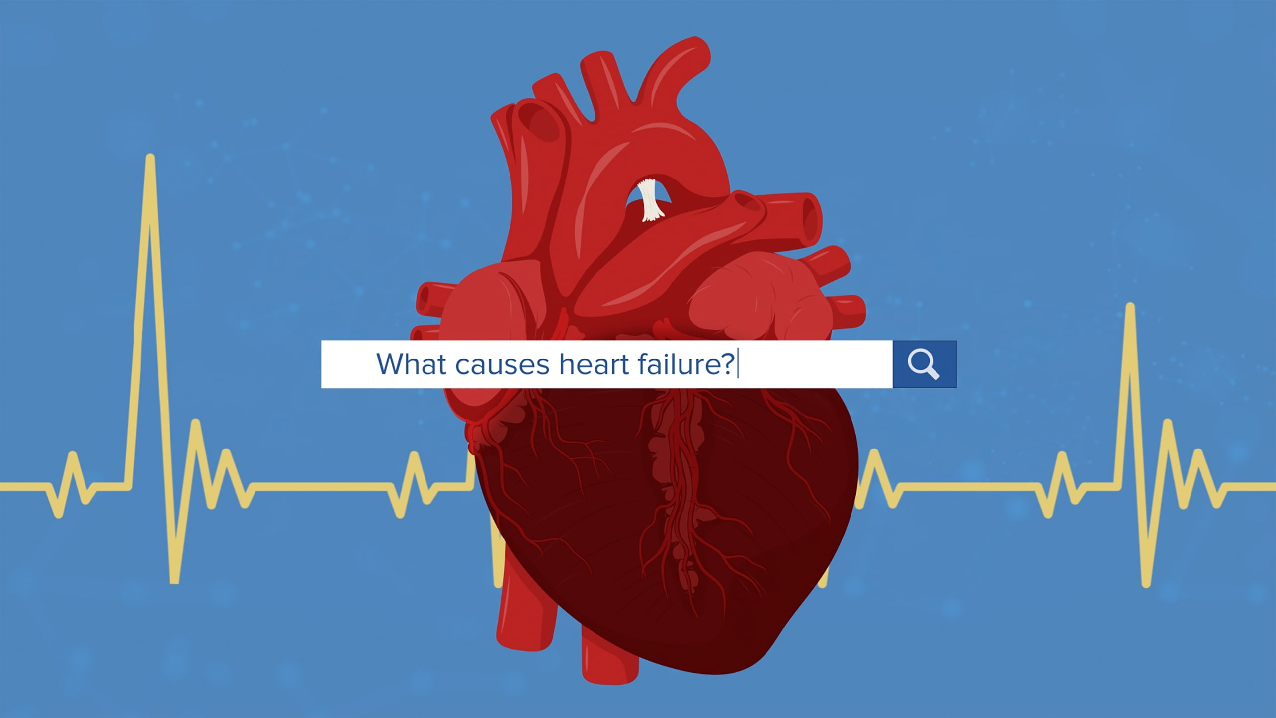 "A drawing of a heart with the text ""What causes heart failure?"" over it."