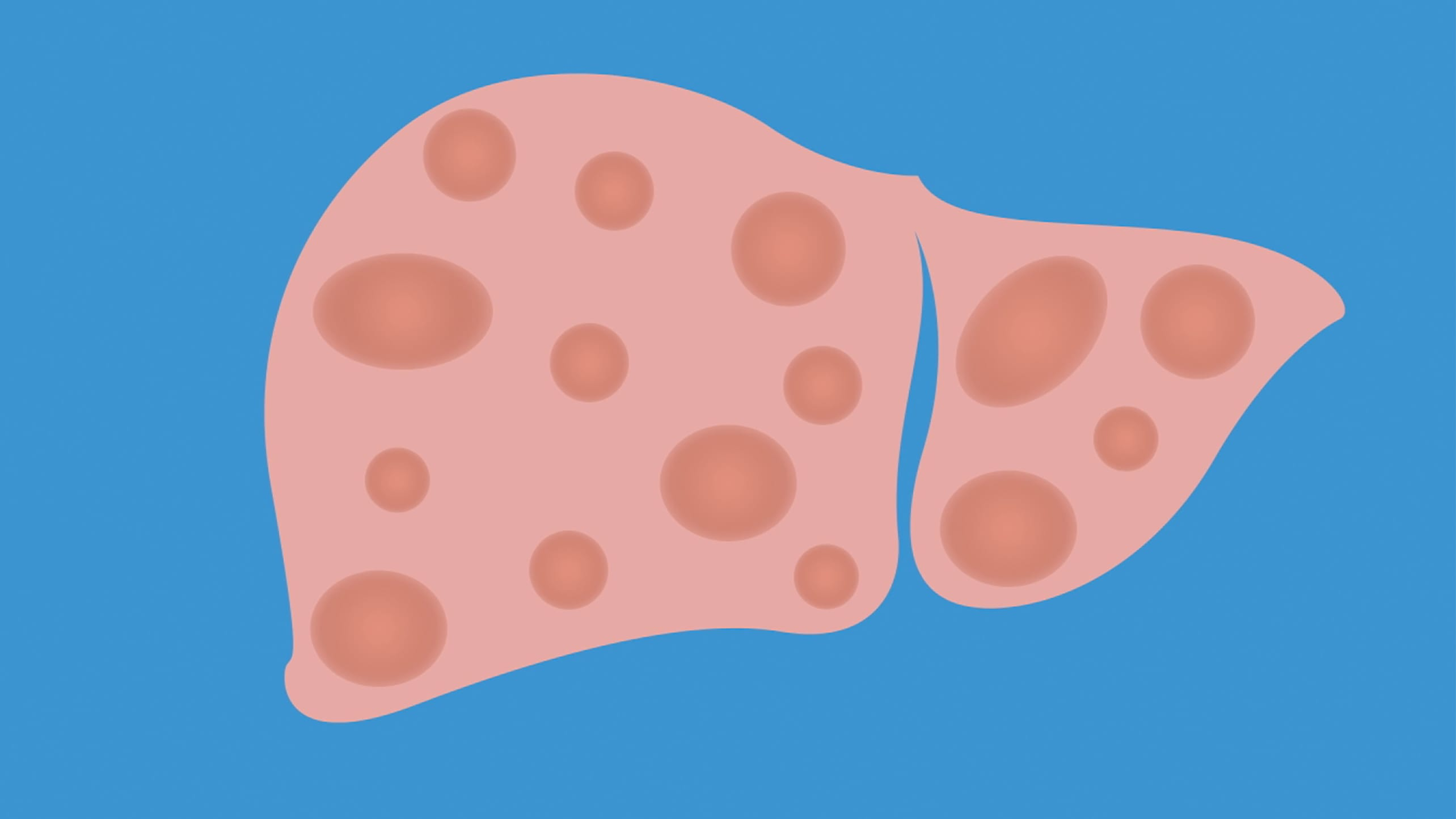 An illustration of a liver with fatty liver disease.