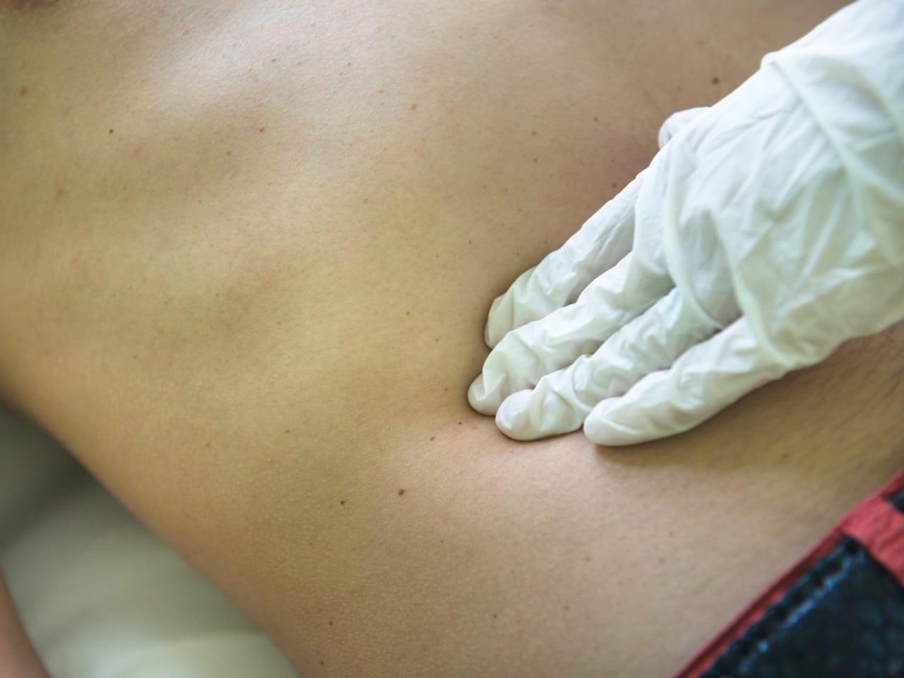 cancer sarcoma in abdomen)