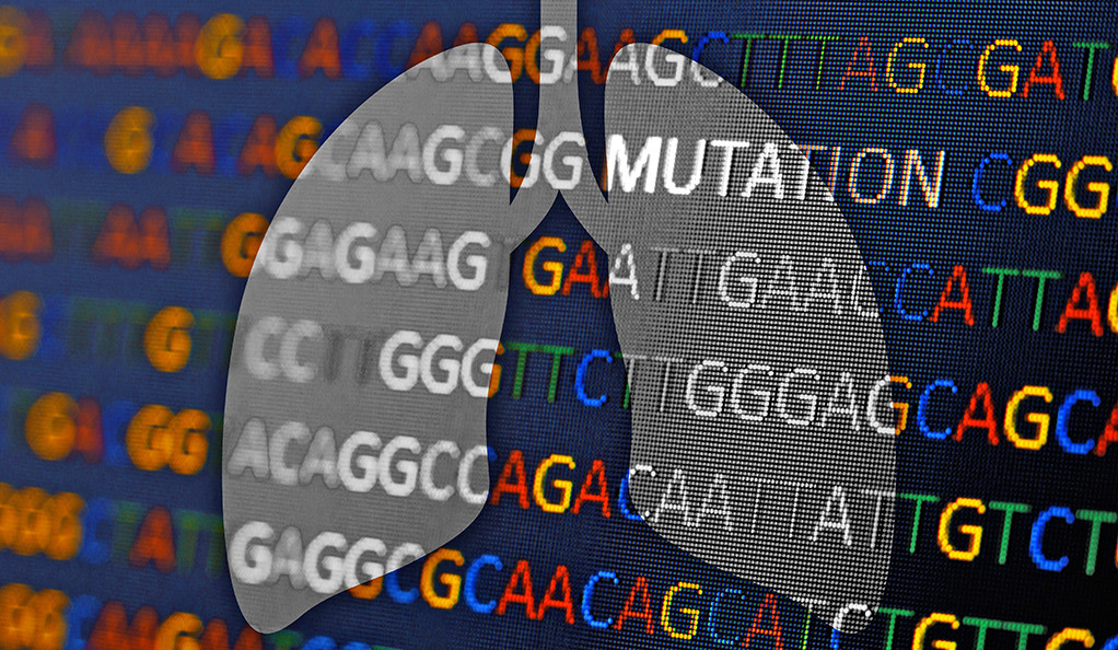 Genetic Testing for Lung Cancer