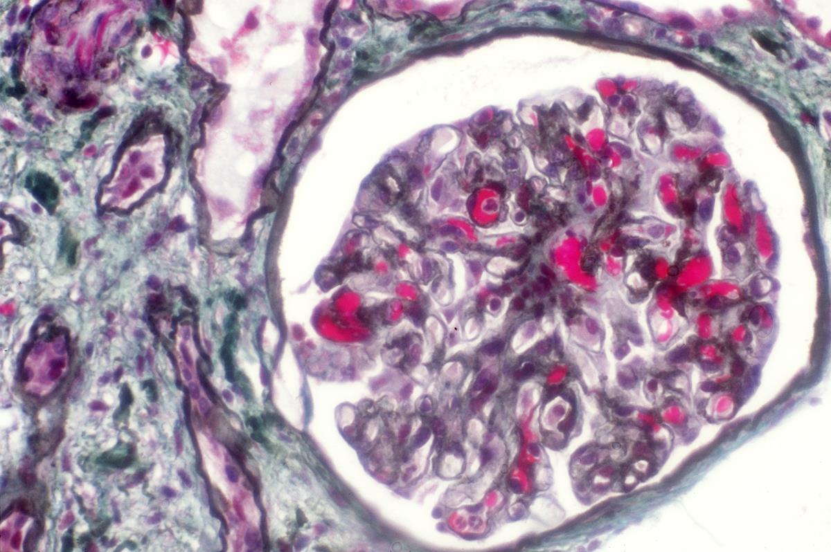 bladder cancer image