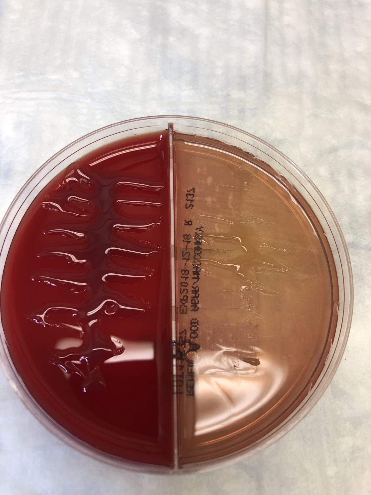 mucoid Pseudomonas aeruginosa