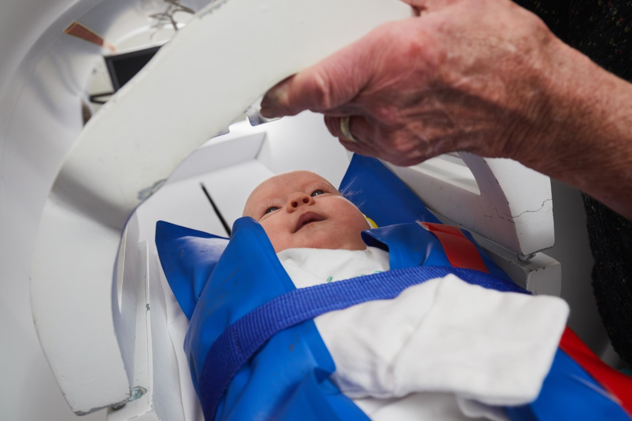 ACE Neonatal Study