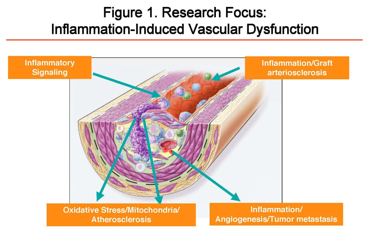Figure 1: Research Focus: Inflammation-induced Vascular Dysfunction