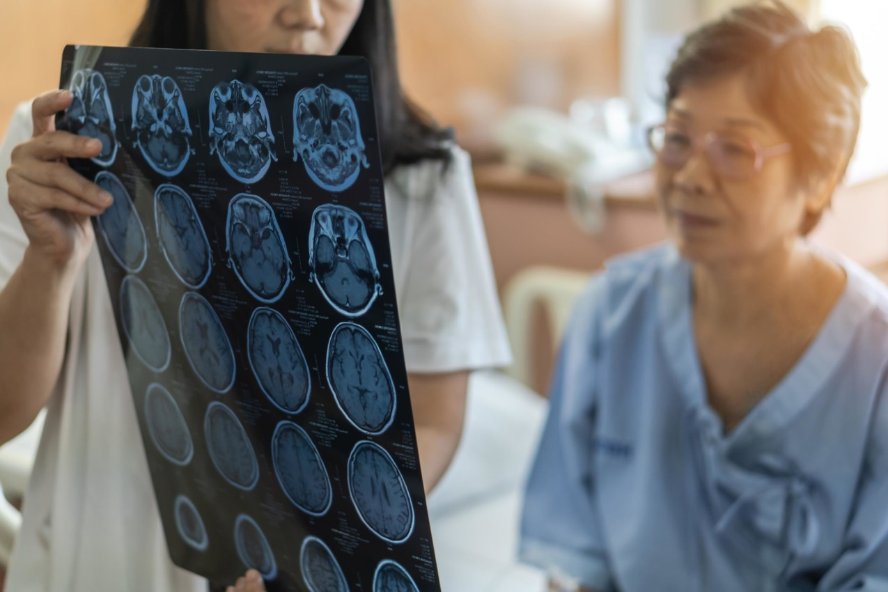 Photo of woman looking at brain scans with doctor showing stroke