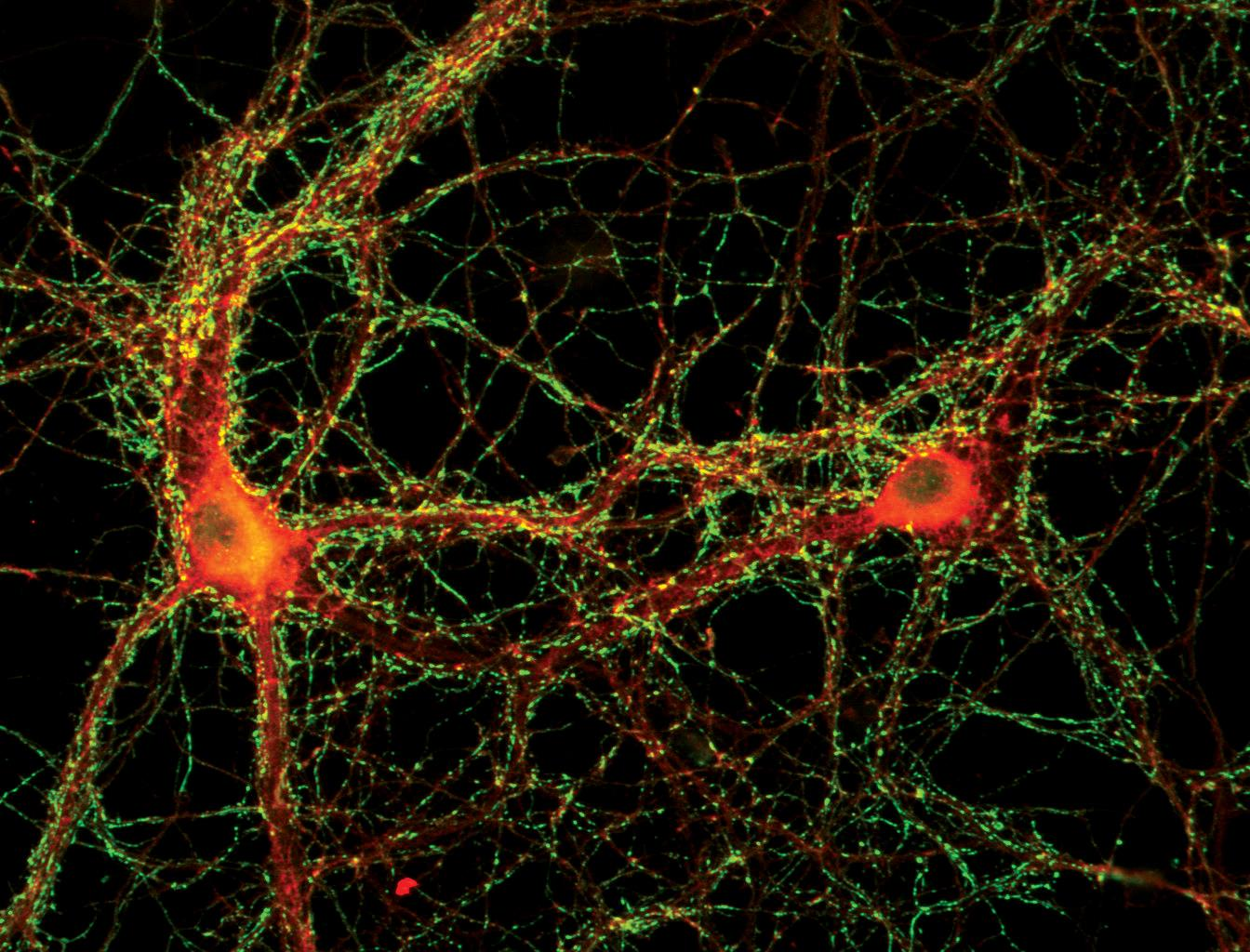 Epifluorescence microscopy produced this image of synapsin (green spots on the surface of two neurons) and adaptin (in red)