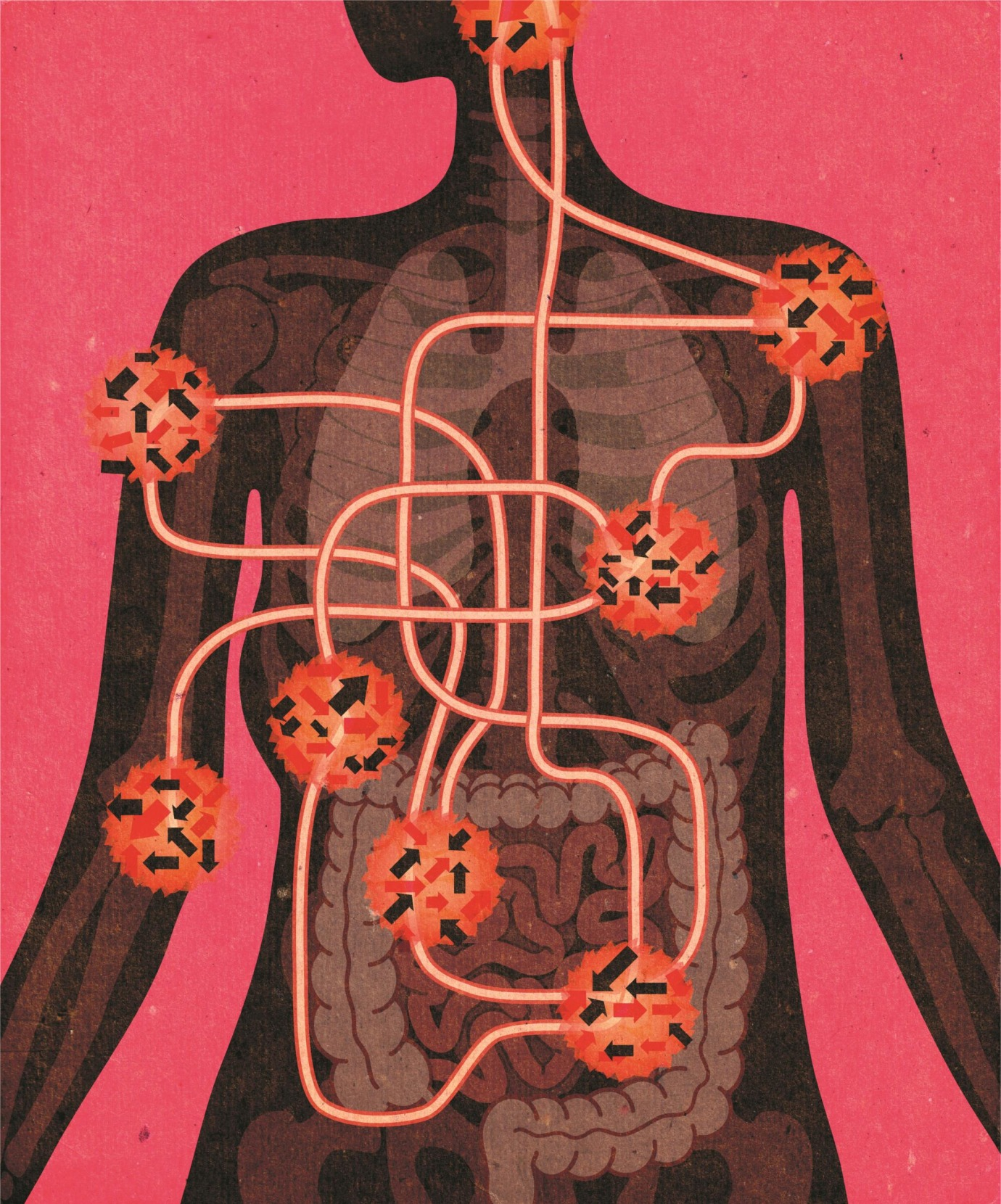 Untangling the web of autoimmune disorders