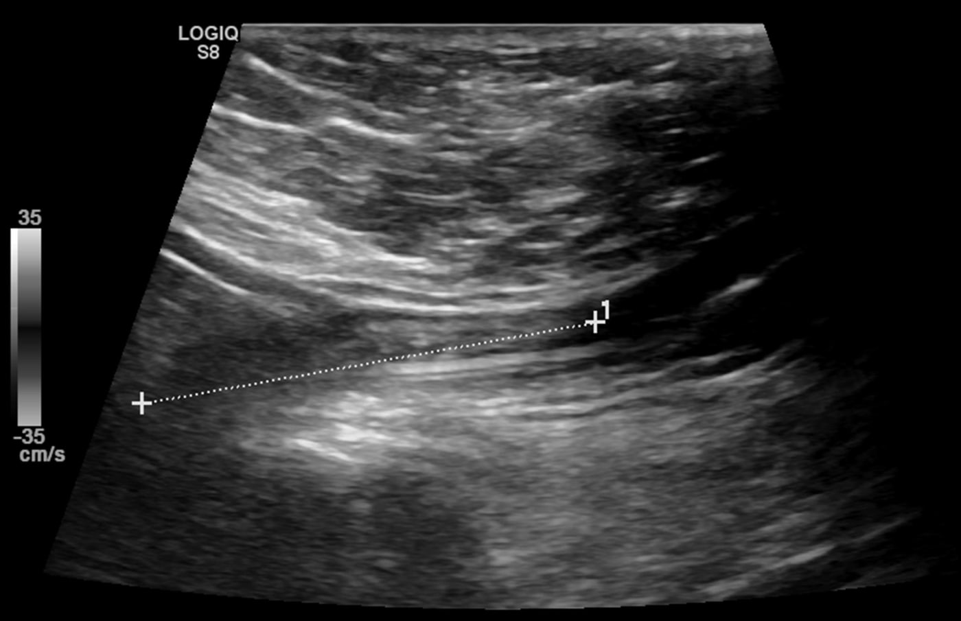 Ultrasound images showing deep venous thrombosis.
