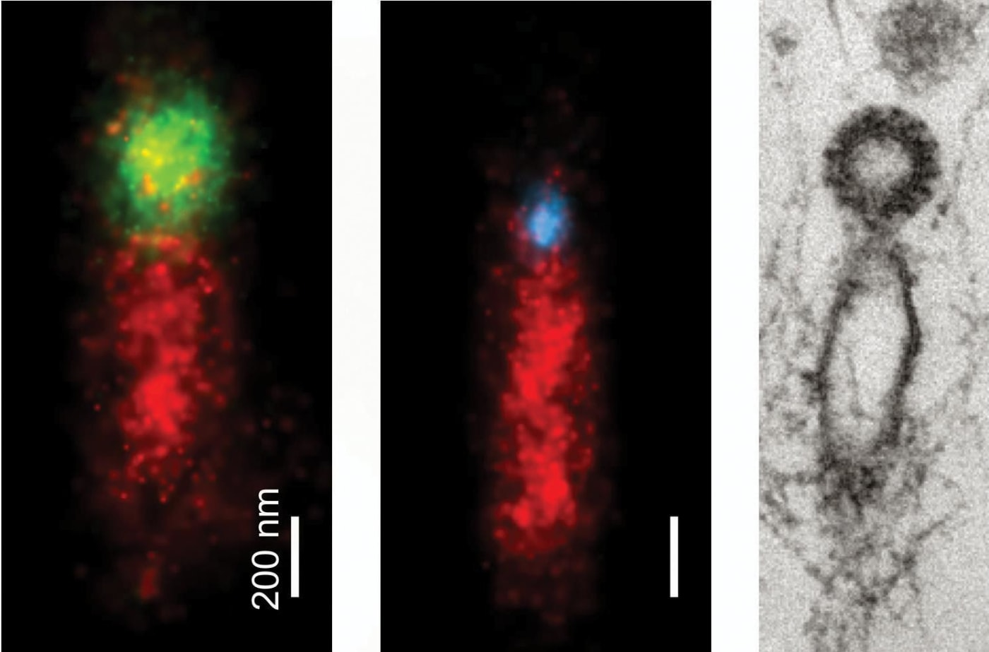 De Camilli and his collaborators used super-resolution microscopy to create these images of vesicles being reformed