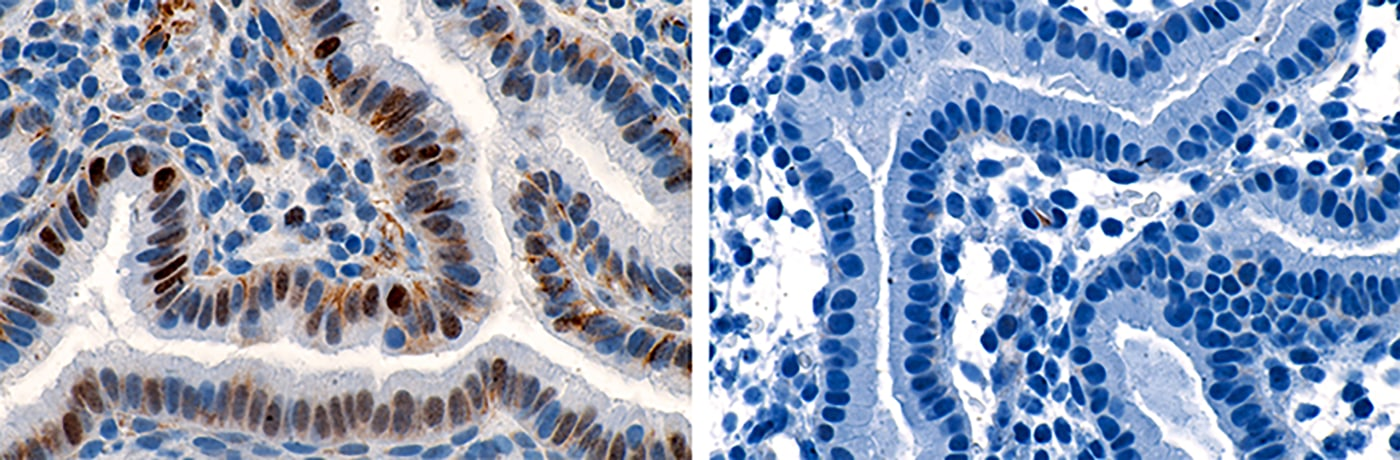 Cyclin E staining of the endometrium from a patient with recurrent pregnancy loss