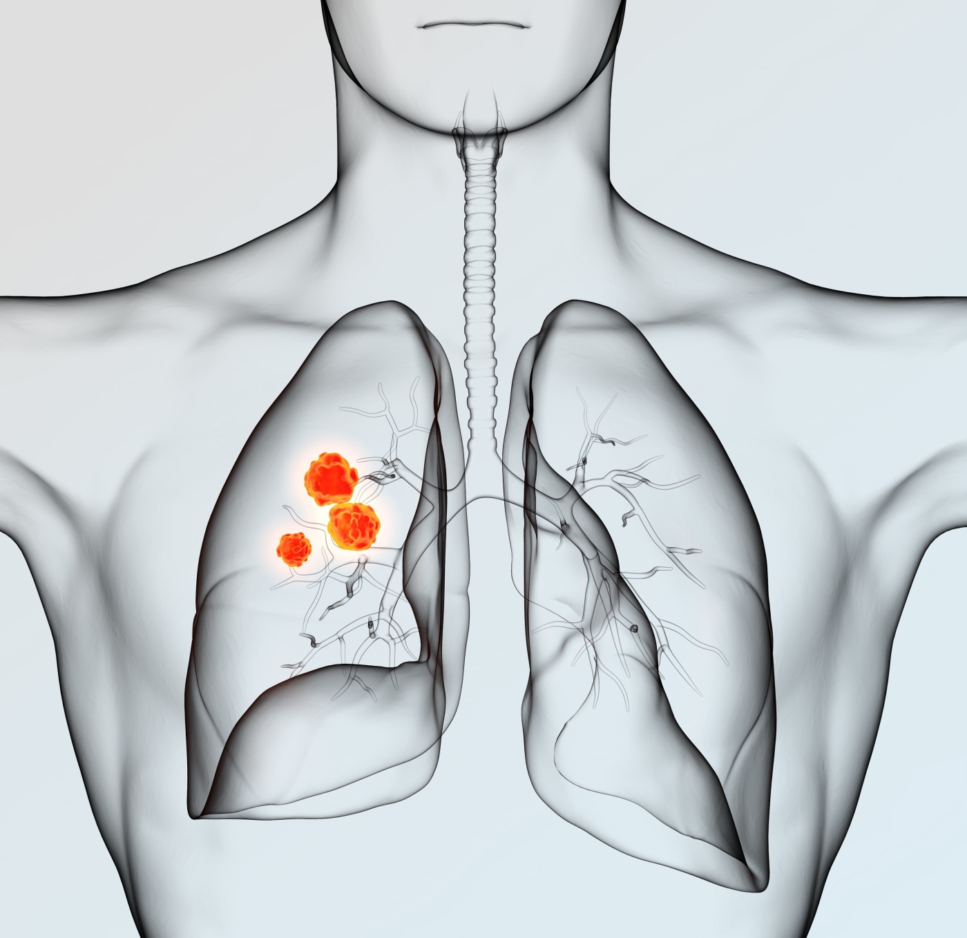 Yale Cancer Center researchers show adding radiation after immunotherapy improves survival time for patients with advanced lung cancer