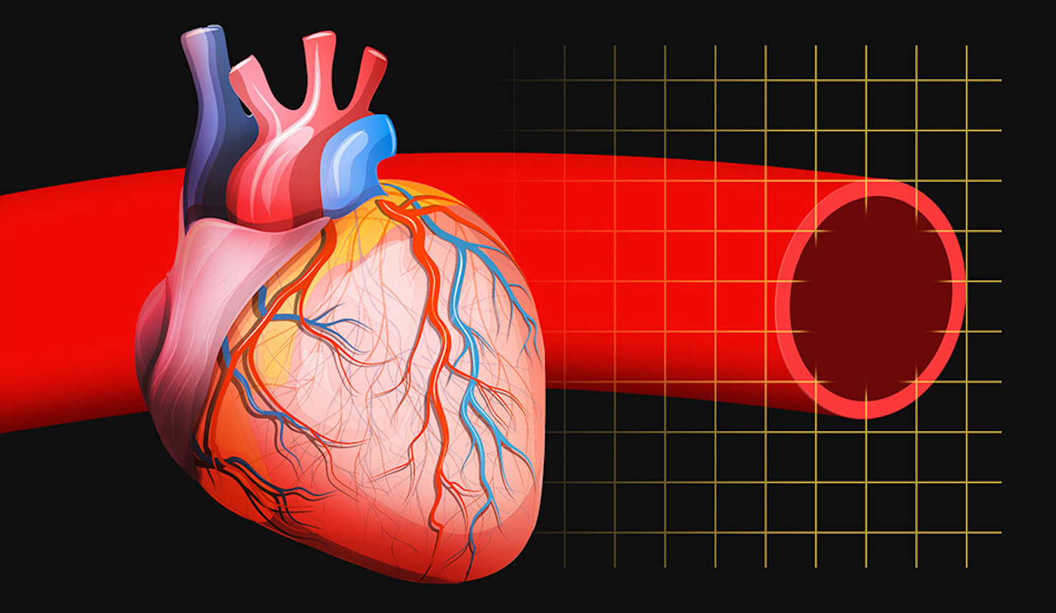 Will Chemo Cause Heart Failure? A New Test May Have Answers