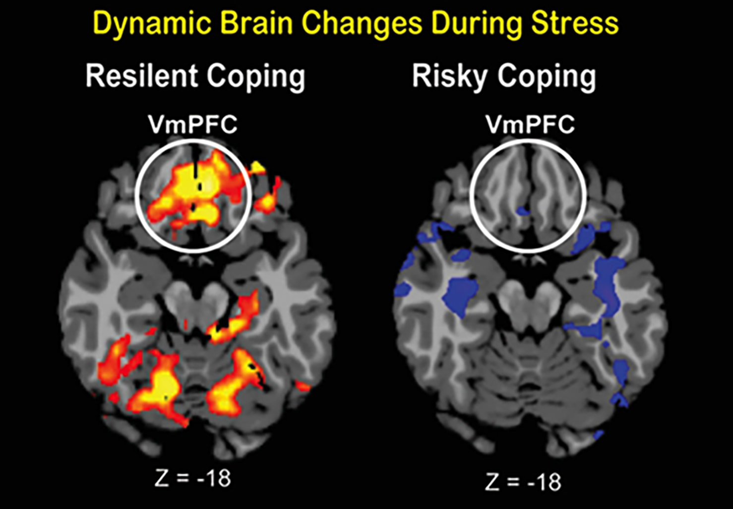 Dynamic brain changes during stress