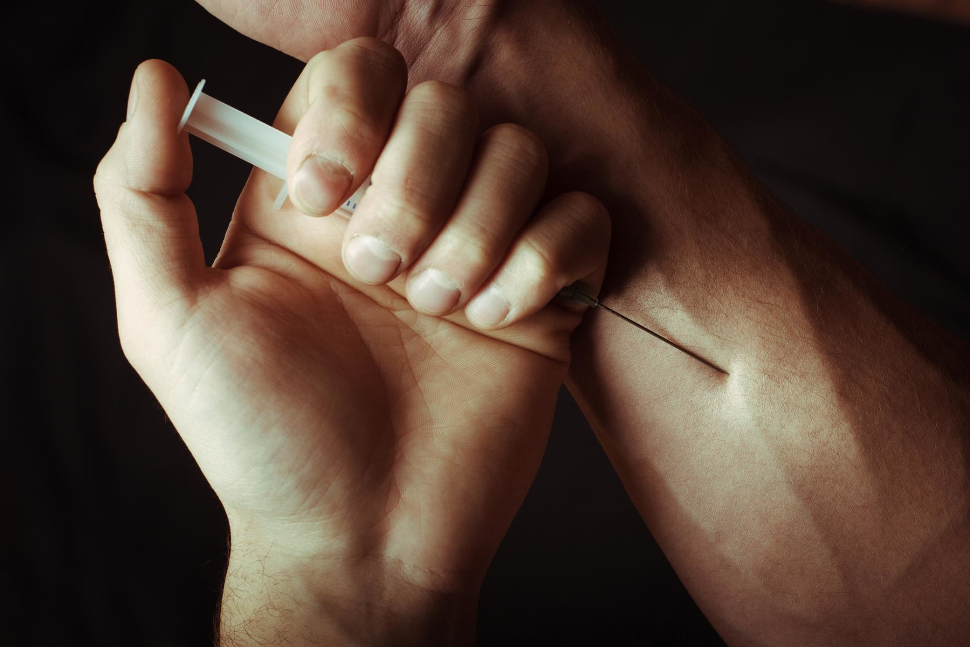 Hand injection
