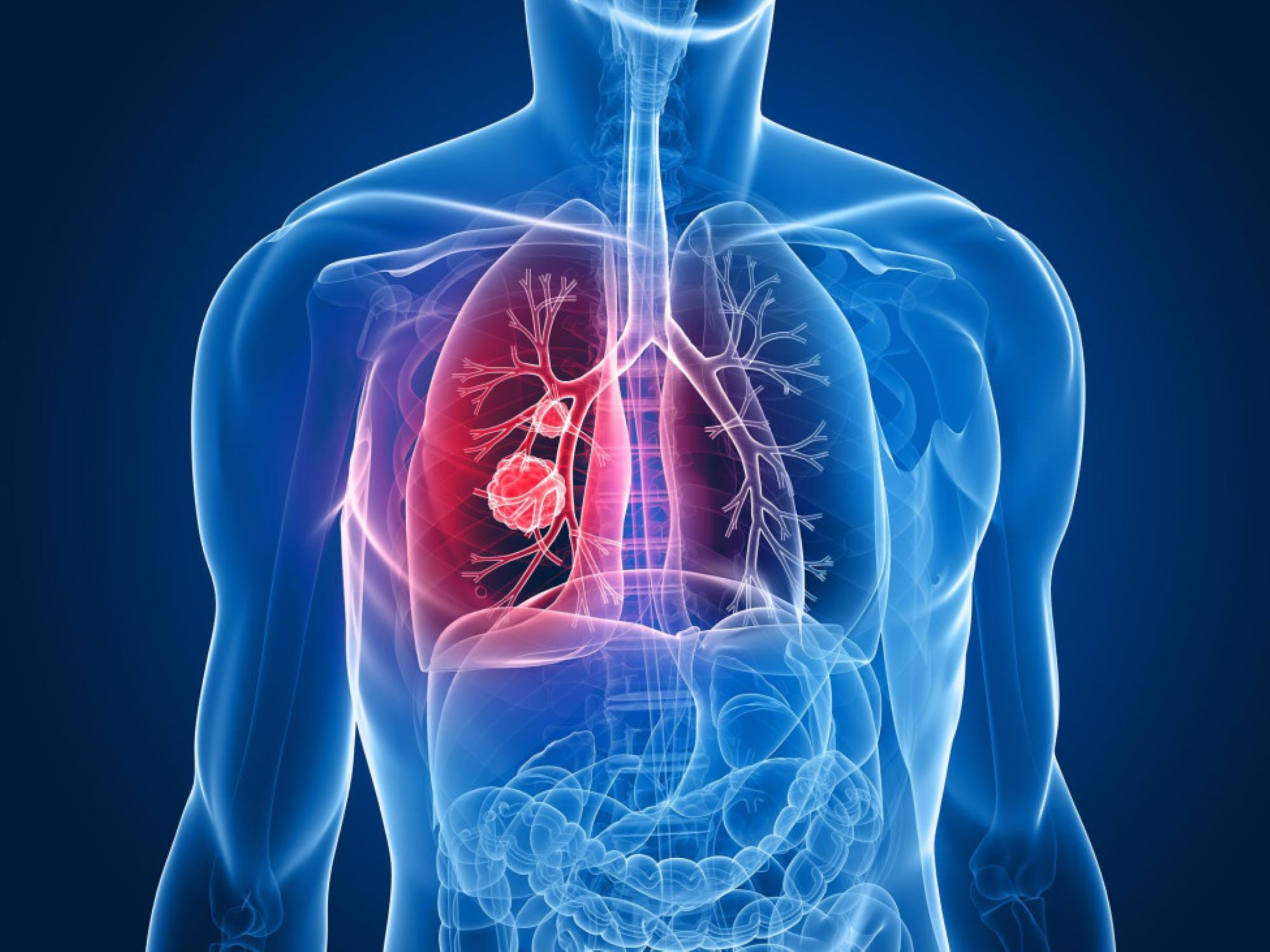 FDA Approves Lung Cancer Treatment