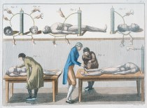 Physician Giovanni Aldini (1762-1834) conducted experiments using electricity on newly executed criminals that produced an opening of the eyes, a quivering of the jaw and contortion of muscles.