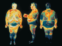 Here, three thermograms of an obese woman show the distribution of both heat and body fat.