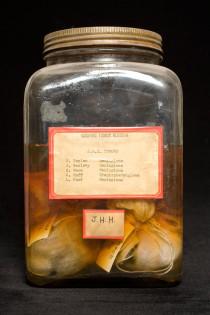 Pioneering neurosurgeon Harvey Cushing's tumor registry included detailed records of eachbrain