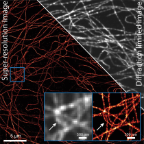 A split image of microtubule structures