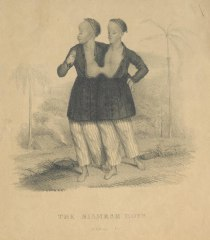 "An anonymous British printmaker of the 19th century made this lithograph of two conjoined twins, Chang and Eng Bunker, who lived from 1811 to 1874 and were known as ""The Siamese Twins."" At the time the lithograph was produced, they were 18."