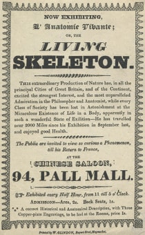 "A London handbill from 1825 advertised a showing of Claude Ambroise Seurat, ""The Living Skeleton."" Seurat was born in Champagne, France, and as he grew, his soft tissue, including flesh, turned to bone."