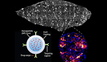 Diagram of the drug-carrying nanoparticle