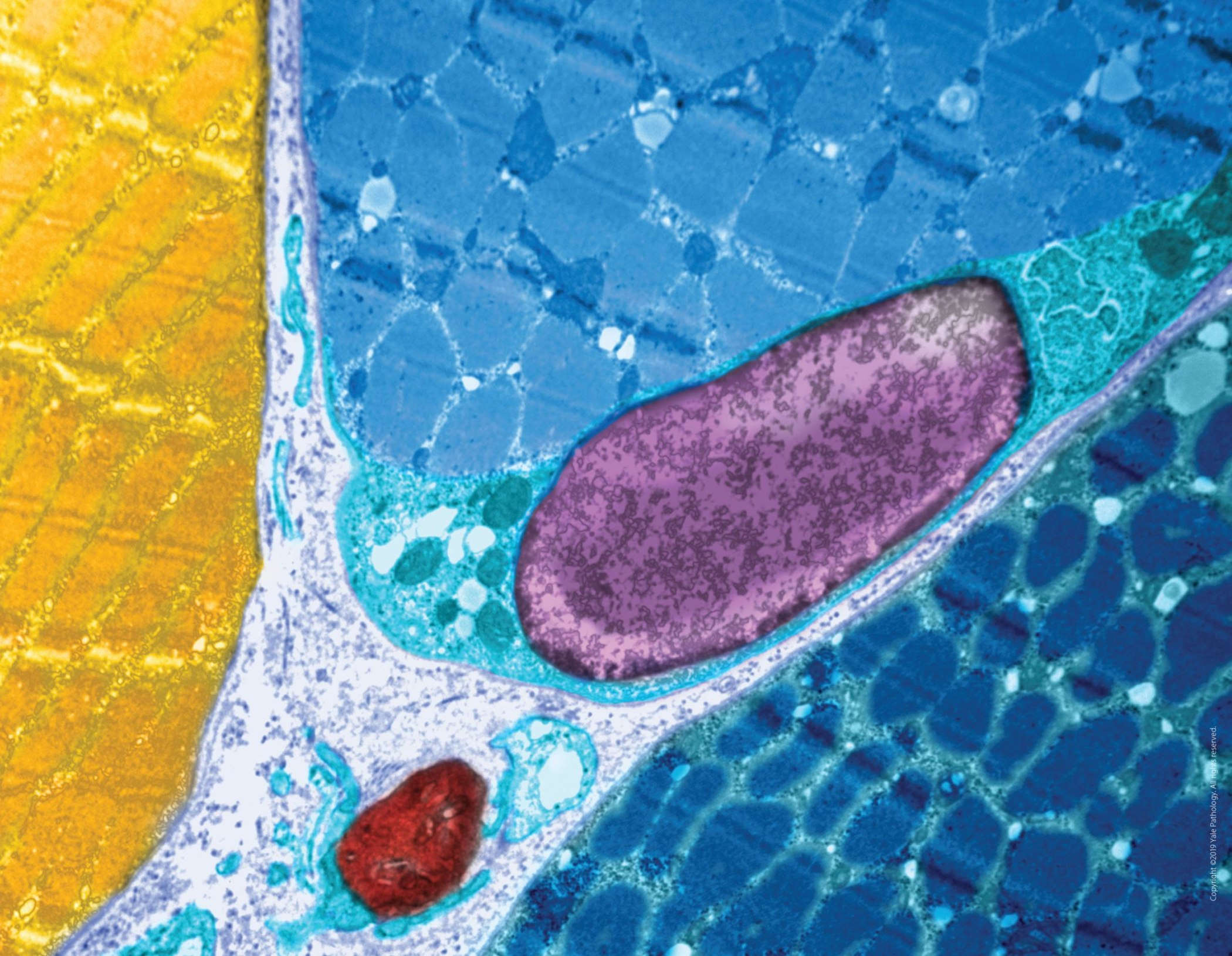 Yale Pathology Labs Calendar 2020 image for July-August