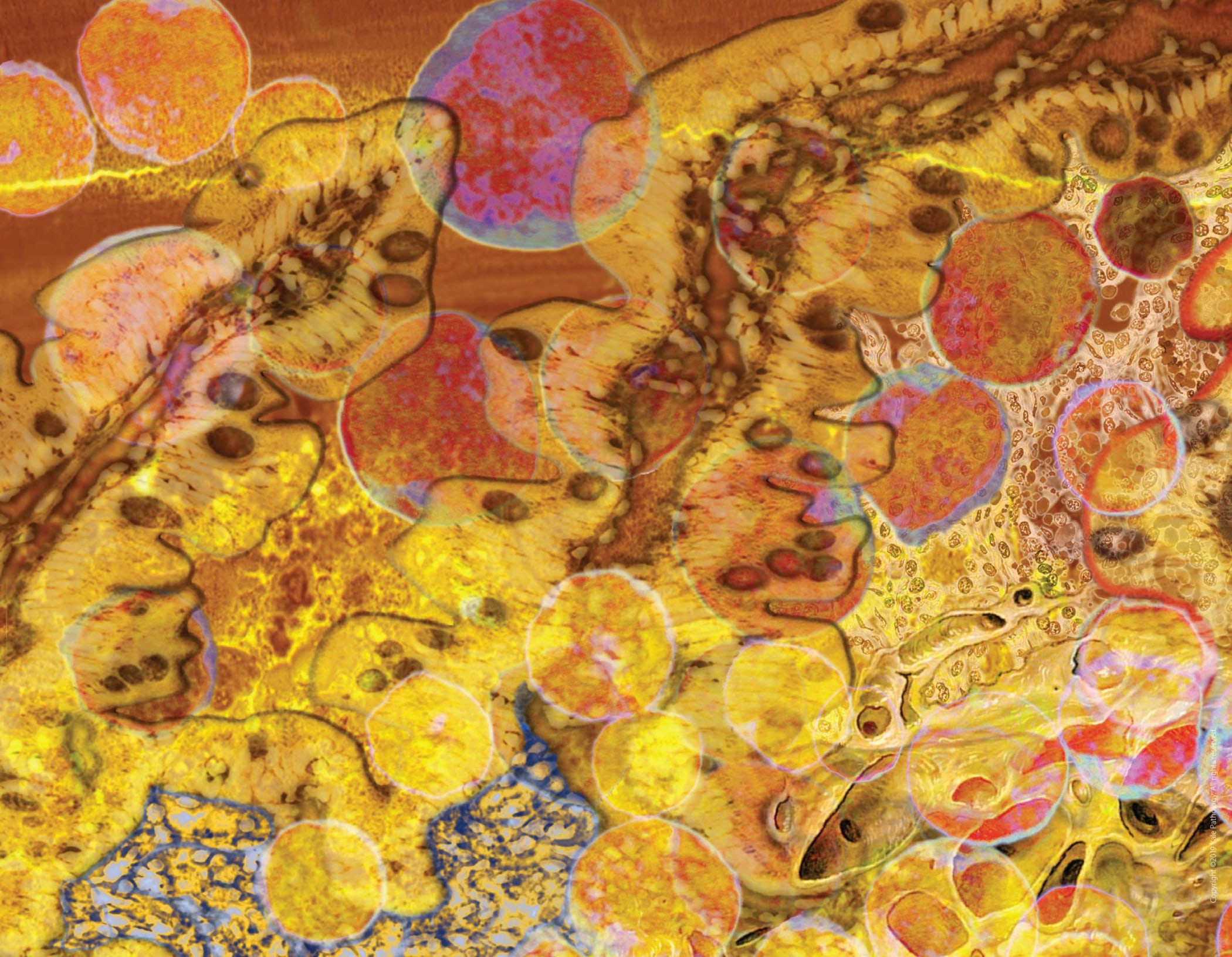 Yale Pathology Labs Calendar 2020 image for September-October