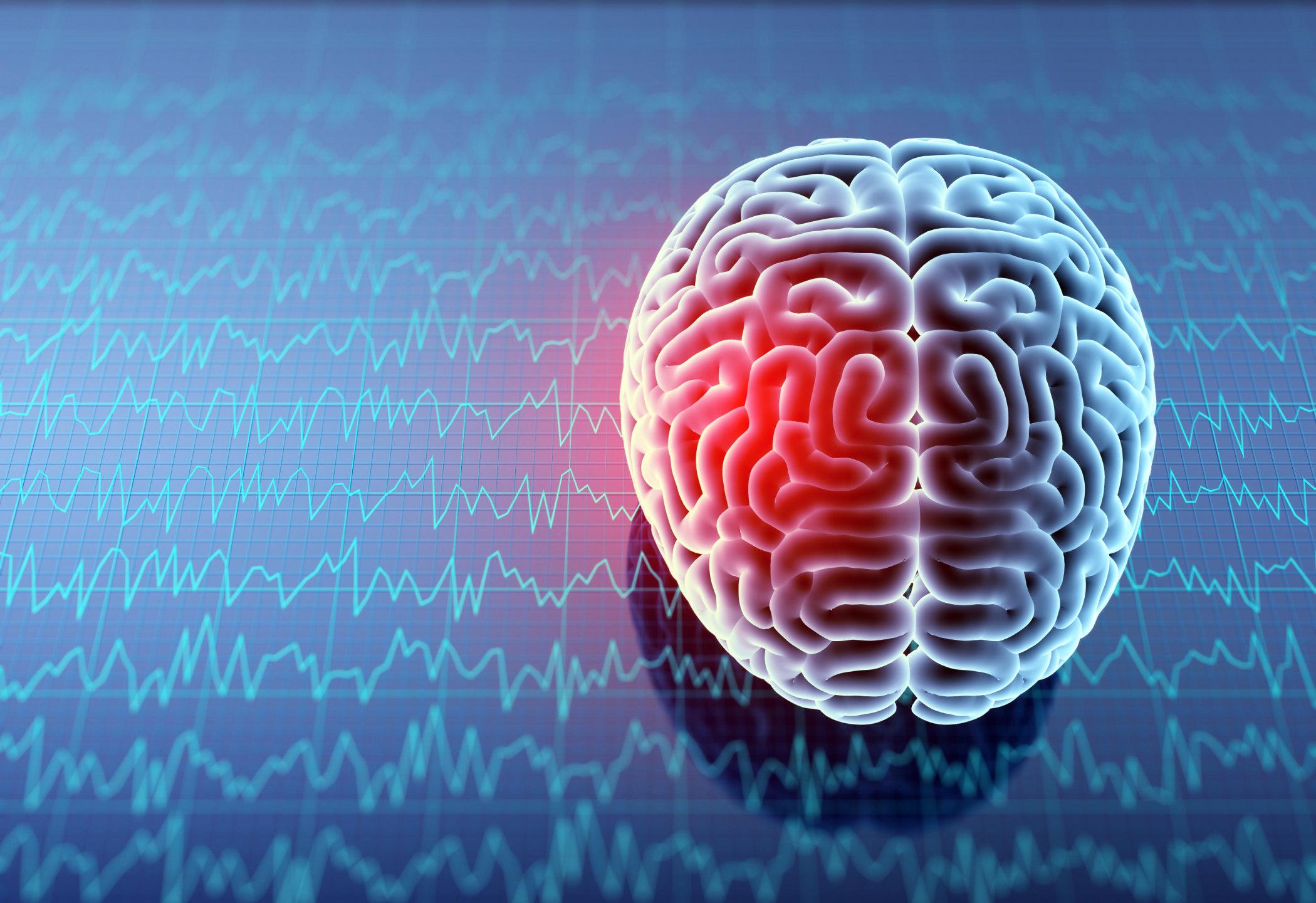 A brain injury
