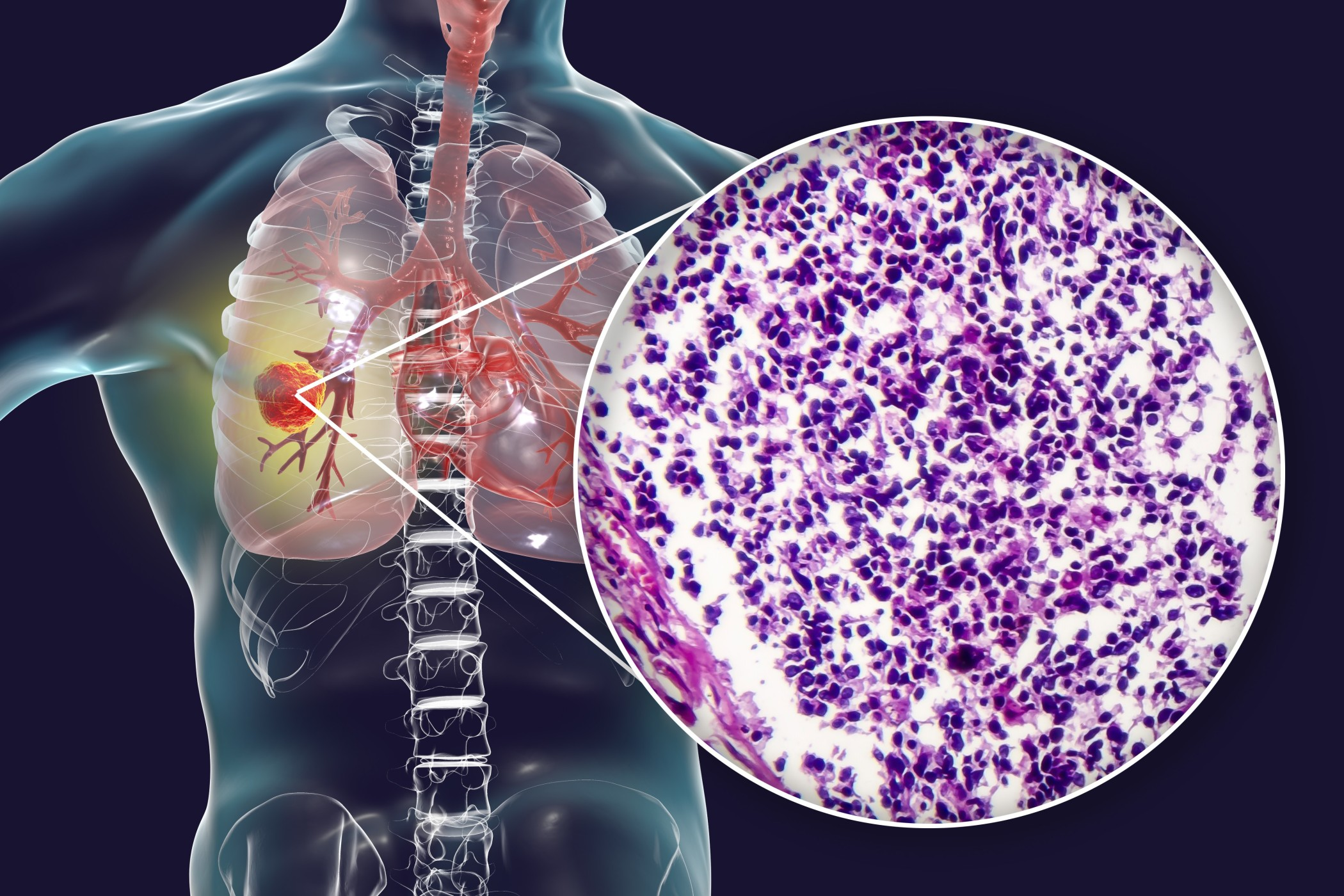 Yale Cancer Center researchers show genetic mutations in advanced lung cancer may predict improved outcomes