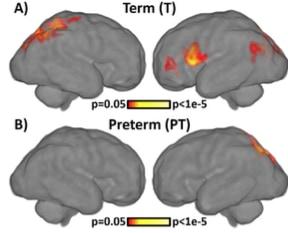 Comparison of preterm (PT) - and term (T) -born fetuses using voxel-level connectivity