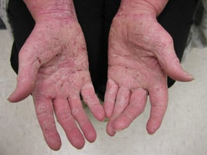 This is what solvents can do to your skin.