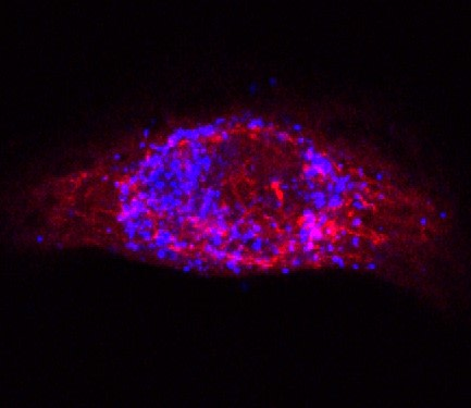 dsRNA (stained with antibody specific to dsRNA; blue) surrounded by mitochondria