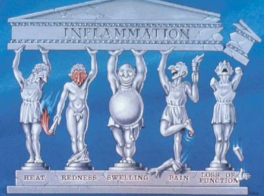 Five personified examples of inflammation dressed in Roman garb struggle to hold up a pediment.