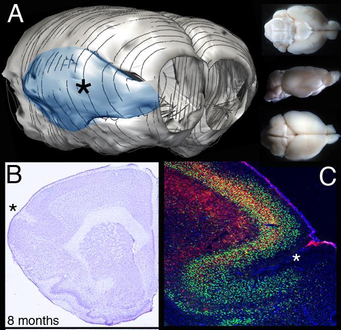 Frontal Brain Regions