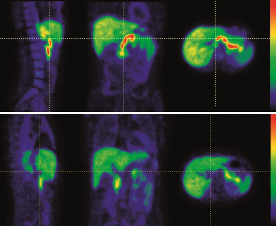 insulin-producing pancreatic ß-cells